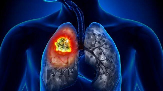 dampak Merokok terhadap Paru- paru